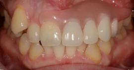 当医院の入れ歯(義歯)について